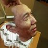 3D printerdə çap olunmuş üz üçün protez